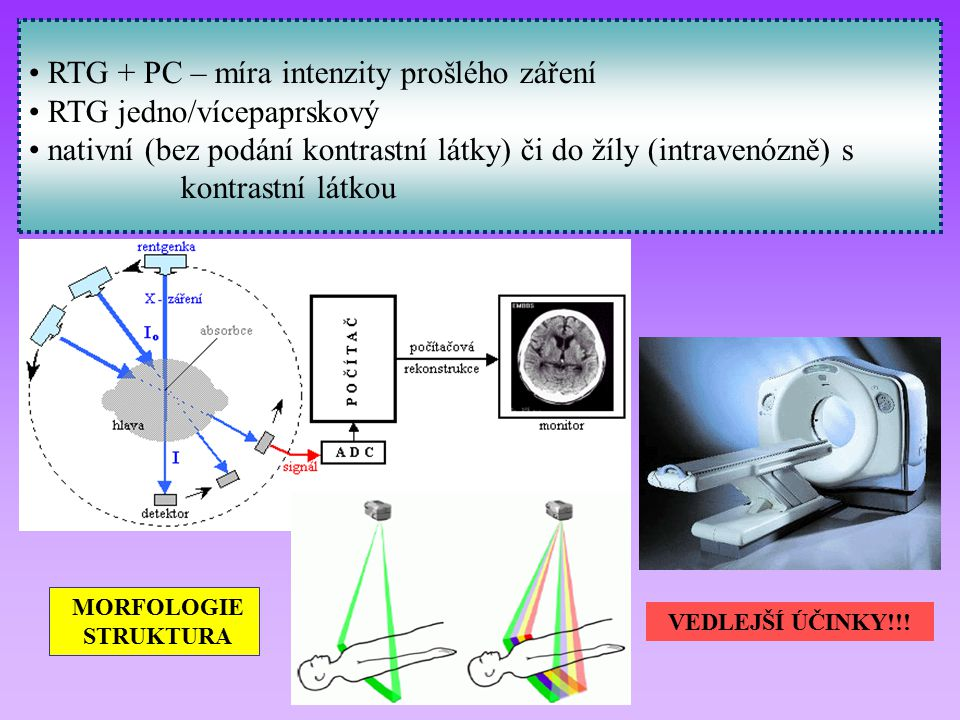 RTG + PC – míra intenzity prošlého záření RTG jedno/vícepaprskový nativní (bez podání kontrastní látky) či do žíly (intravenózně) s kontrastní látkou MORFOLOGIE STRUKTURA VEDLEJŠÍ ÚČINKY!!!
