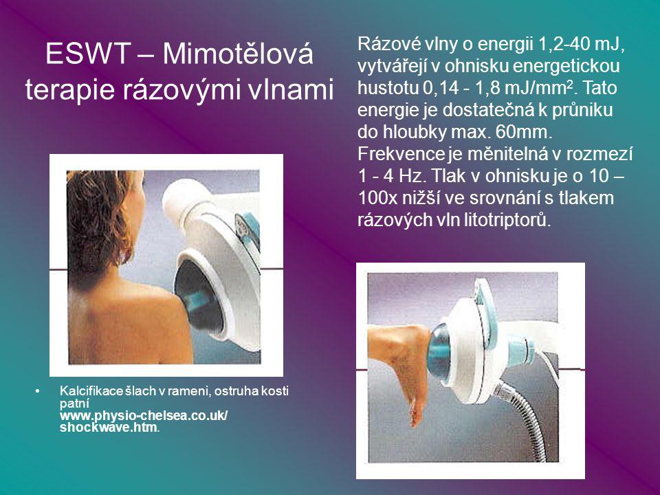 ESWT – Mimotělová terapie rázovými vlnami Kalcifikace šlach v rameni, ostruha kosti patní www.physio-chelsea.co.uk/ shockwave.htm.