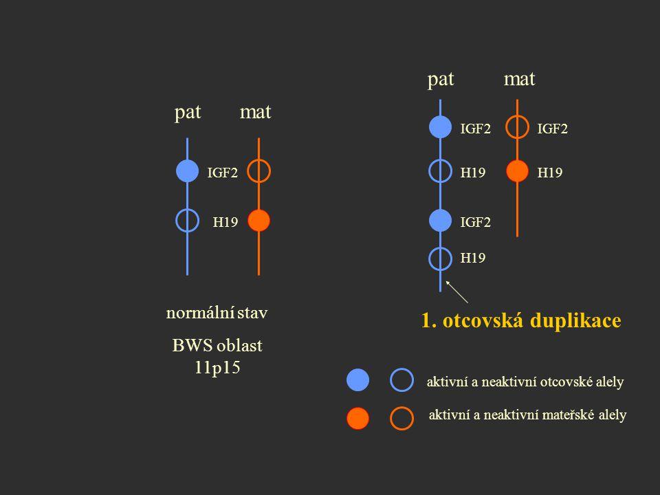 normální stav BWS oblast 11p15 pat mat 1. otcovská duplikace aktivní a neaktivní otcovské alely aktivní a neaktivní mateřské alely IGF2 H19 IGF2 H19