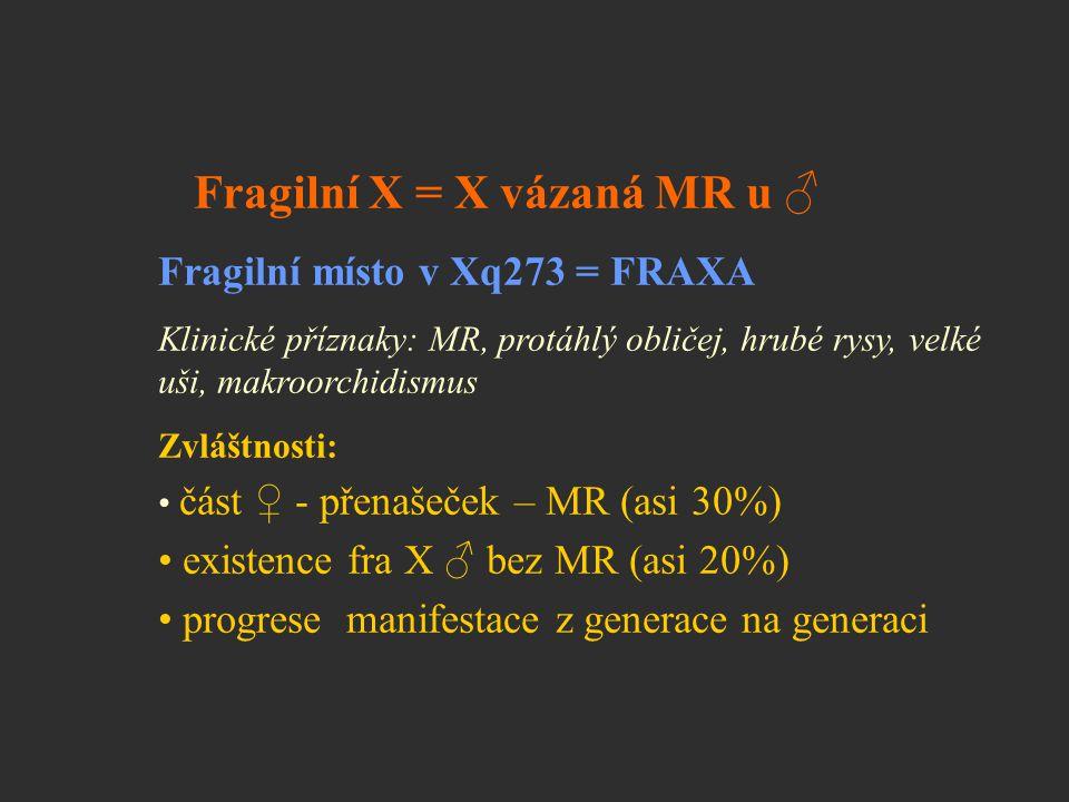 Fragilní X = X vázaná MR u ♂ Fragilní místo v Xq273 = FRAXA Klinické příznaky: MR, protáhlý obličej, hrubé rysy, velké uši, makroorchidismus Zvláštnos