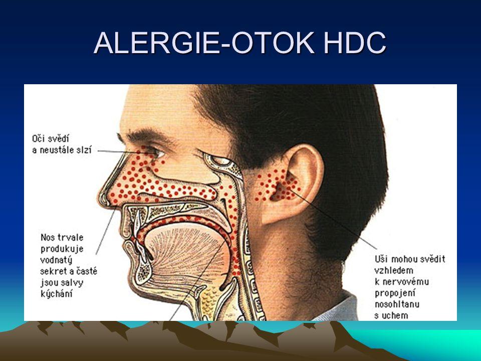 ALERGIE-OTOK HDC