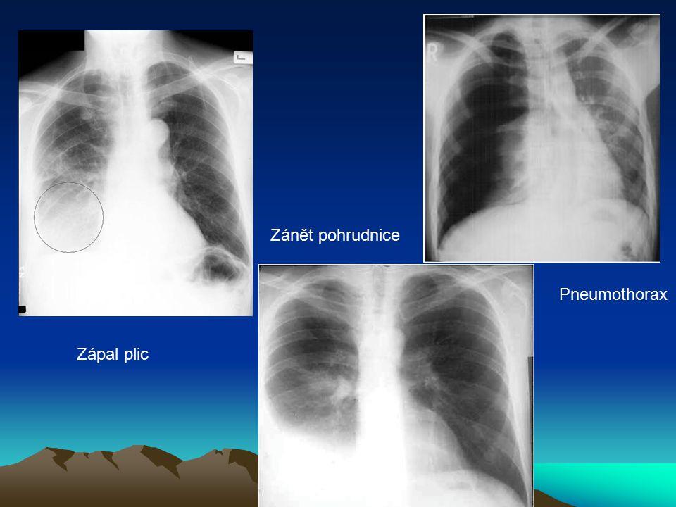Zápal plic Zánět pohrudnice Pneumothorax