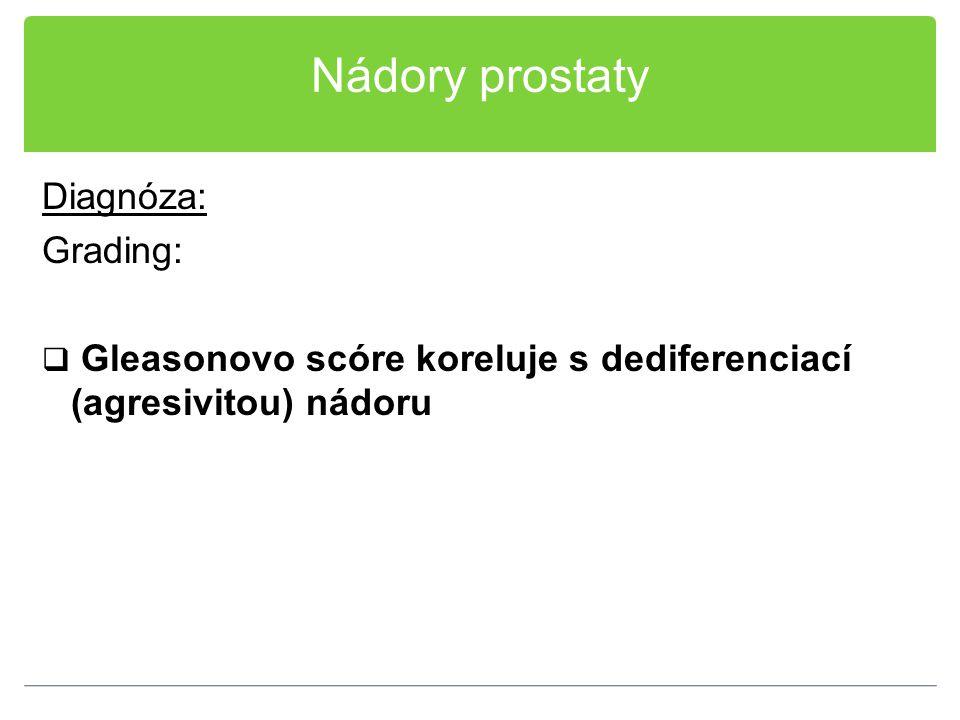 Nádory prostaty Diagnóza: Grading:  Gleasonovo scóre koreluje s dediferenciací (agresivitou) nádoru