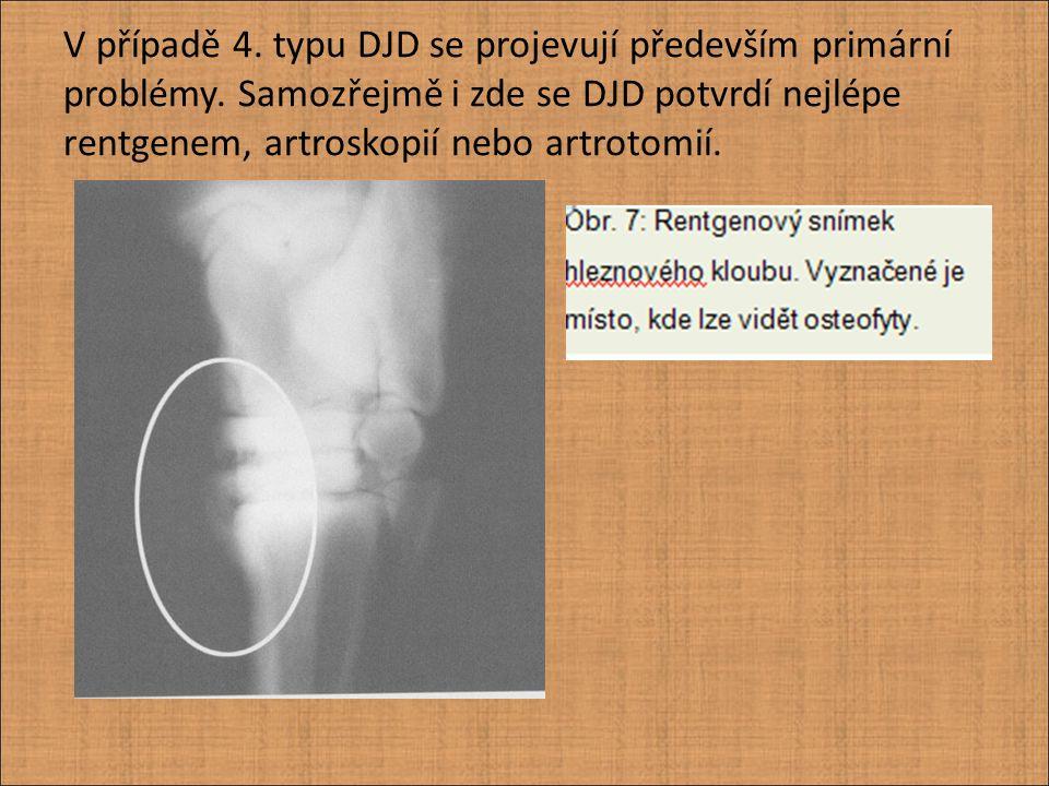 Protože rentgen nemůže dostatečně průkazně zachytit všechny patologické změny na chrupavce, je někdy třeba použít i jiné diagnostické metody.