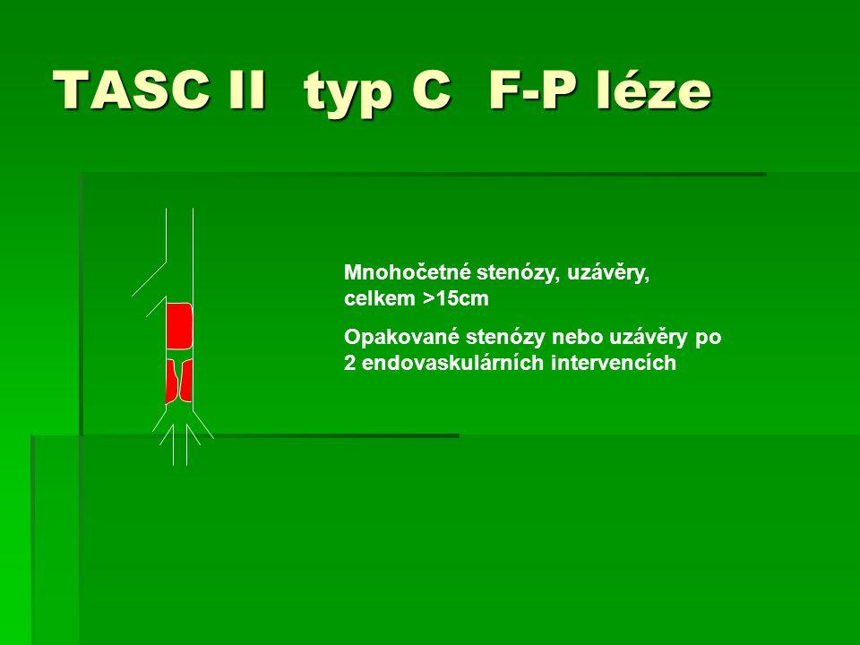 TASC II typ C F-P léze Mnohočetné stenózy, uzávěry, celkem >15cm Opakované stenózy nebo uzávěry po 2 endovaskulárních intervencích