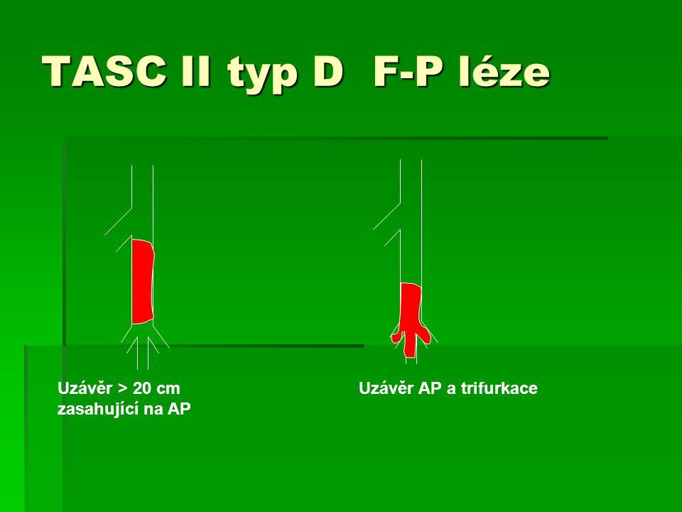 TASC II typ D F-P léze Uzávěr > 20 cm zasahující na AP Uzávěr AP a trifurkace