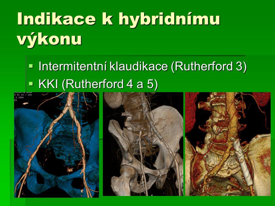 Indikace k hybridnímu výkonu  Intermitentní klaudikace (Rutherford 3)  KKI (Rutherford 4 a 5)