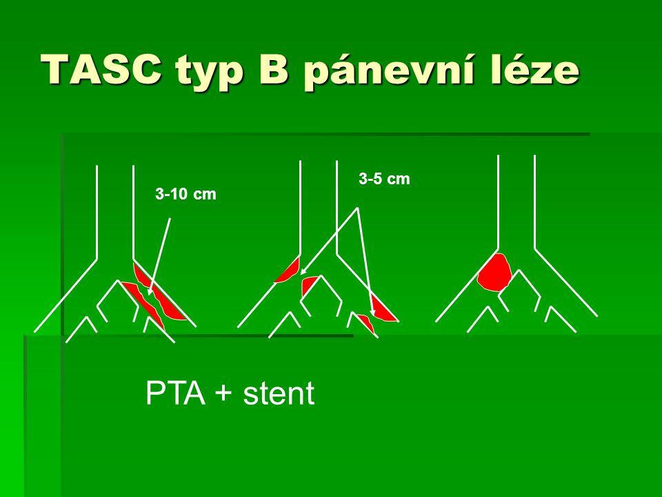 3-10 cm 3-5 cm TASC typ B pánevní léze PTA + stent