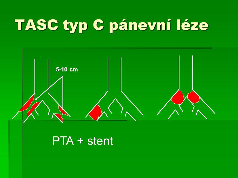 5-10 cm TASC typ C pánevní léze PTA + stent