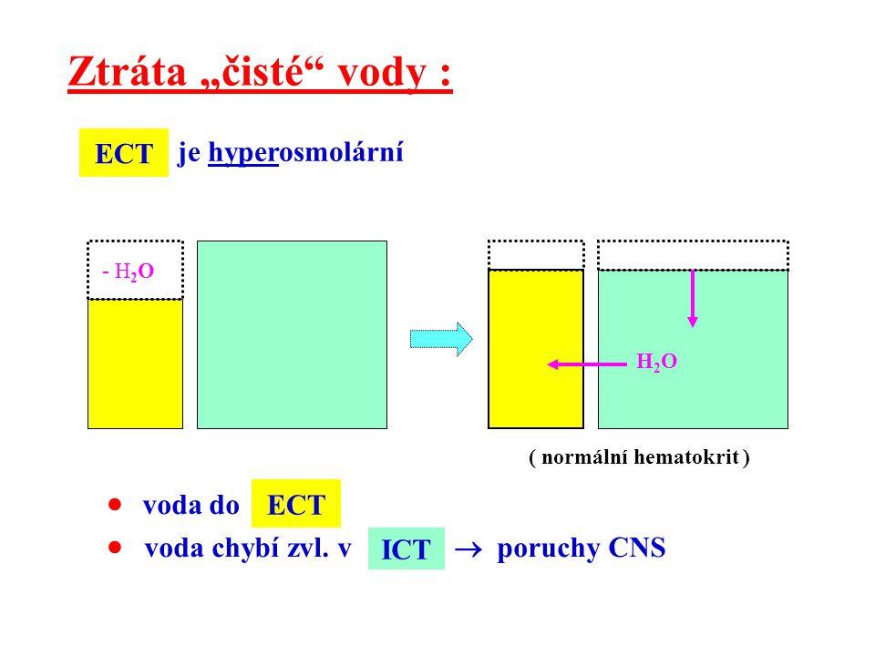 """Ztráta """"čisté"""" vody : H2OH2O - H 2 O  voda do  voda chybí zvl. v  poruchy CNS ECT ICT ( normální hematokrit ) ECT je hyperosmolární"""