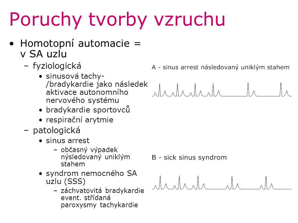 Poruchy tvorby vzruchu Homotopní automacie = v SA uzlu –fyziologická sinusová tachy- /bradykardie jako následek aktivace autonomního nervového systému