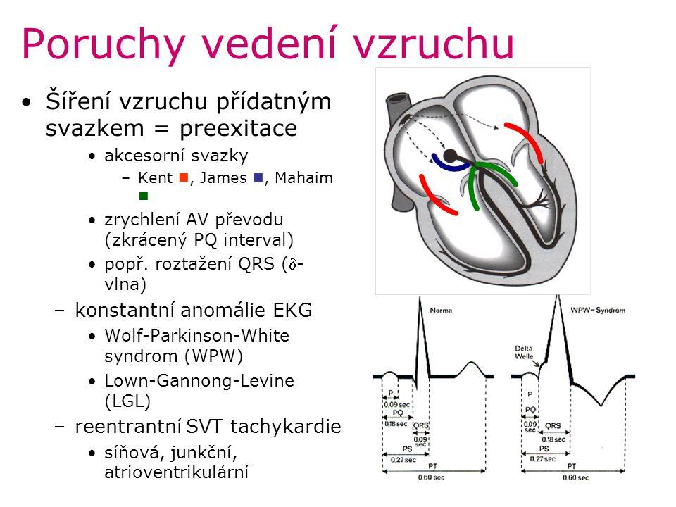 Poruchy vedení vzruchu Šíření vzruchu přídatným svazkem = preexitace akcesorní svazky –Kent, James, Mahaim zrychlení AV převodu (zkrácený PQ interval)