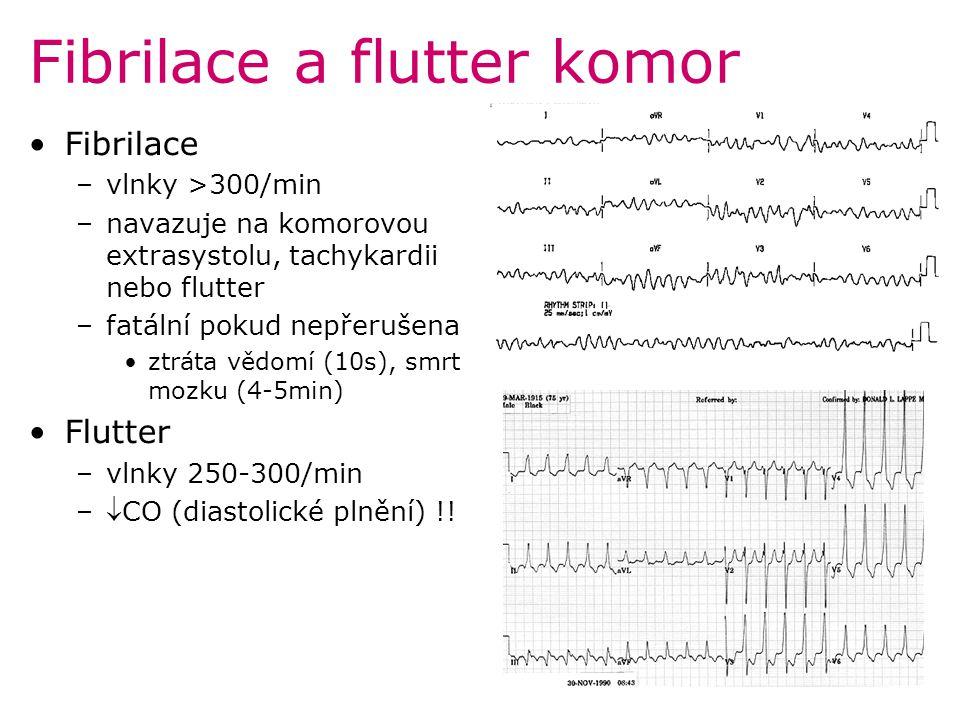 Fibrilace a flutter komor Fibrilace –vlnky >300/min –navazuje na komorovou extrasystolu, tachykardii nebo flutter –fatální pokud nepřerušena ztráta vě