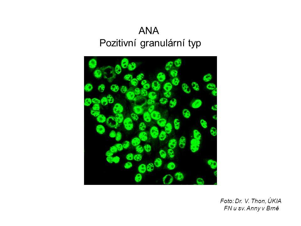 ANA Pozitivní granulární typ Foto: Dr. V. Thon, ÚKIA FN u sv. Anny v Brně