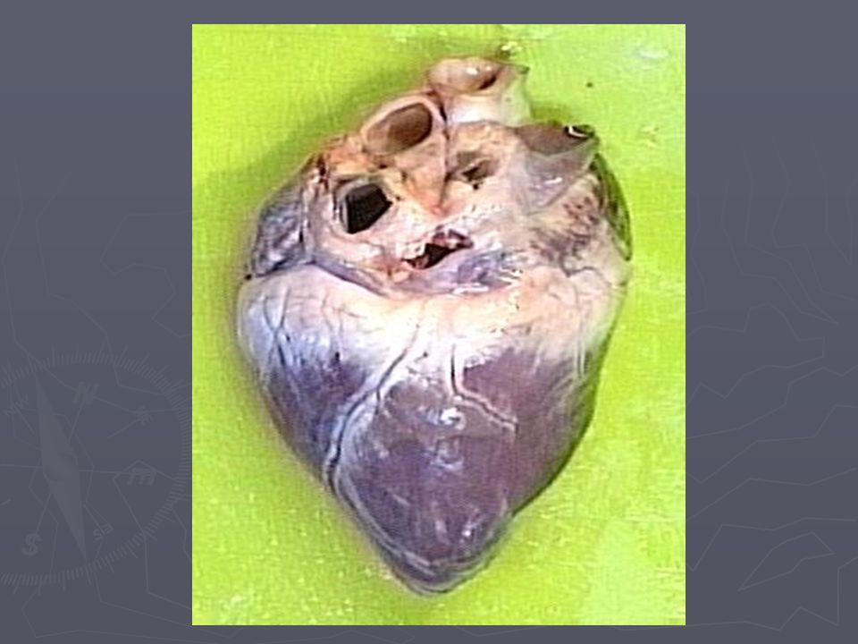 Miniinvazivní postup ► Činnost srdce se nezastaví ► Malá incise ► Rychlejší uzdravení ► Jenom u pacientů bez komplikací