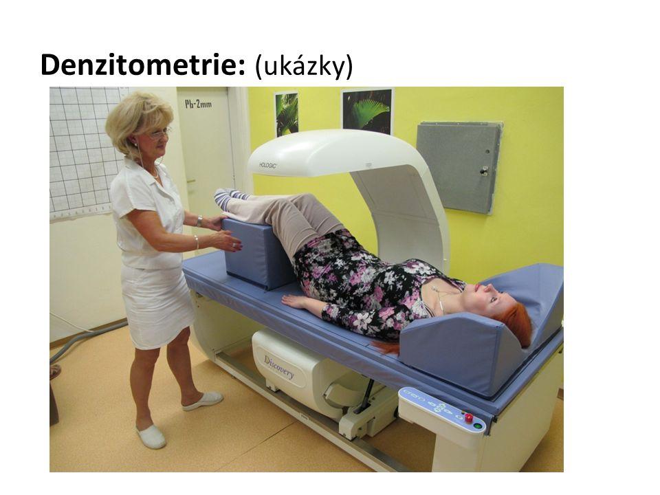 Denzitometrie: (ukázky)