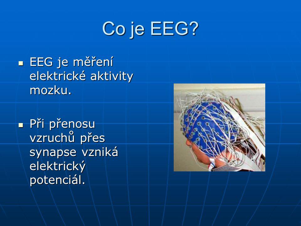 Frekvenční pásma EEG Rozeznáváme pět pásem frekvencí: Rozeznáváme pět pásem frekvencí: Gamma (>30Hz) Gamma (>30Hz) Beta (12-30Hz) Beta (12-30Hz) Alfa (8-12Hz) Alfa (8-12Hz) Théta (4-8Hz) Théta (4-8Hz) Delta (<4Hz) Delta (<4Hz)