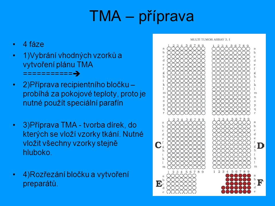 TMA – příprava 4 fáze 1)Vybrání vhodných vzorků a vytvoření plánu TMA ===========  2)Příprava recipientního bločku – probíhá za pokojové teploty, pro