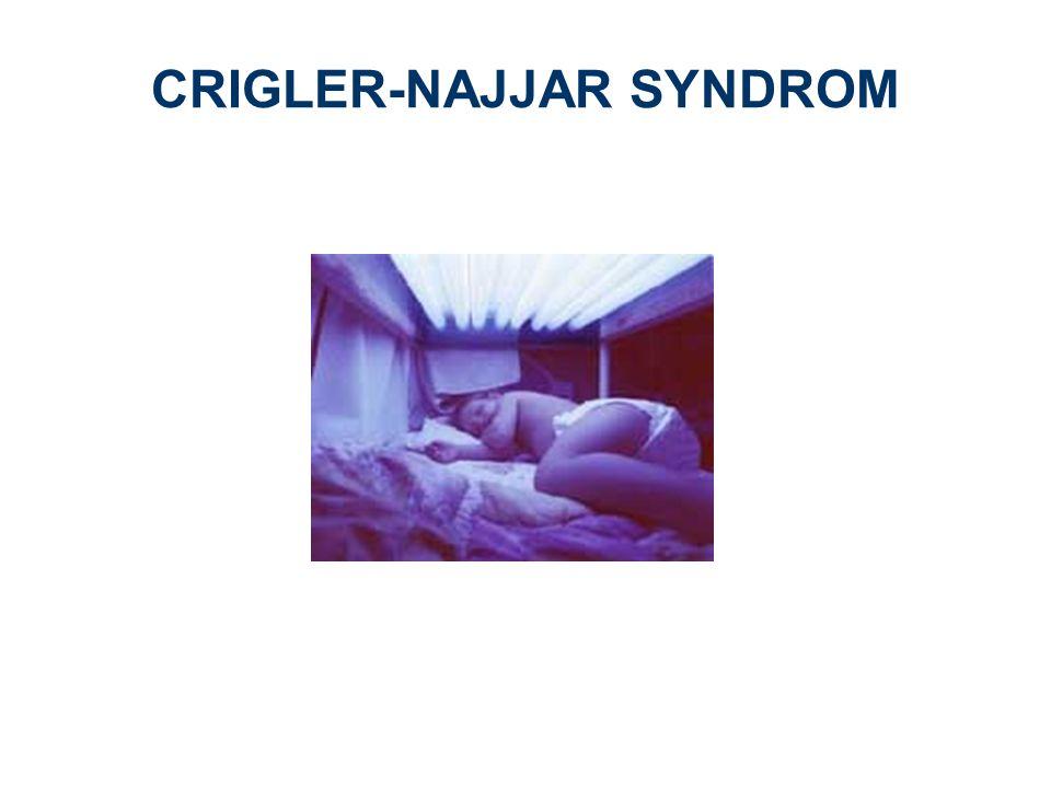 CRIGLER-NAJJAR SYNDROM