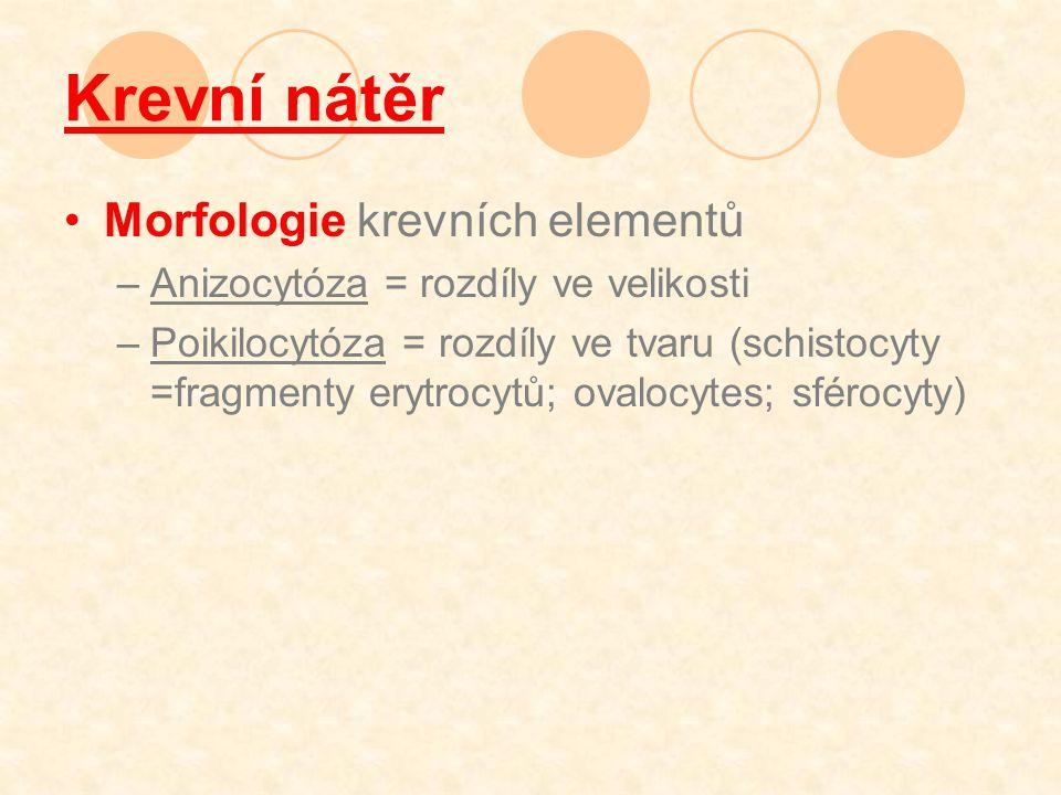 Krevní nátěr Morfologie krevních elementů –Anizocytóza = rozdíly ve velikosti –Poikilocytóza = rozdíly ve tvaru (schistocyty =fragmenty erytrocytů; ovalocytes; sférocyty)