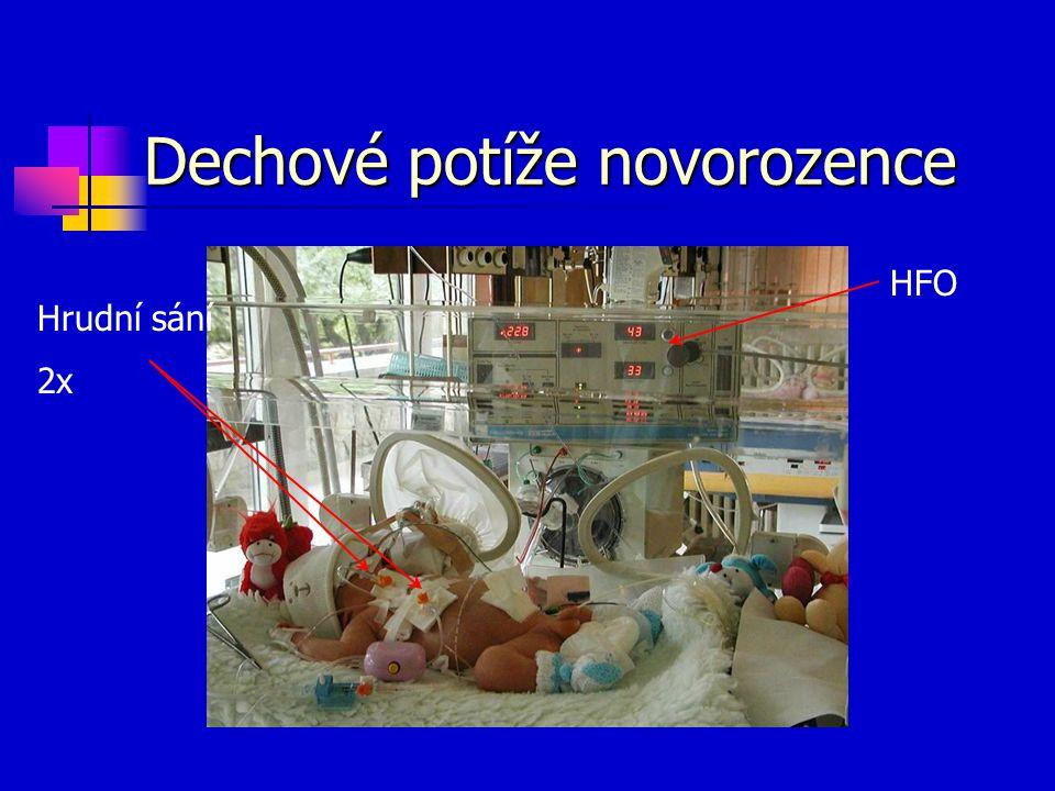 Dechové potíže novorozence Hrudní sání 2x HFO