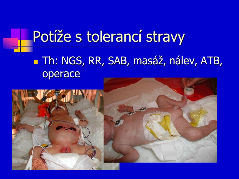Potíže s tolerancí stravy Th: NGS, RR, SAB, masáž, nálev, ATB, operace Th: NGS, RR, SAB, masáž, nálev, ATB, operace