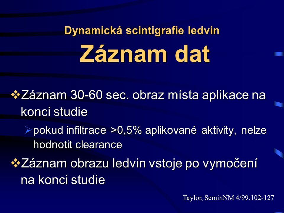 Dynamická scintigrafie ledvin Záznam dat  Záznam 30-60 sec. obraz místa aplikace na konci studie  pokud infiltrace >0,5% aplikované aktivity, nelze