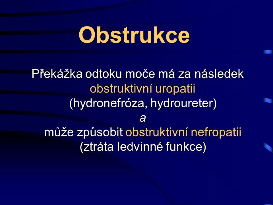 Obstrukce Překážka odtoku moče má za následek obstruktivní uropatii (hydronefróza, hydroureter) a může způsobit obstruktivní nefropatii (ztráta ledvinné funkce)