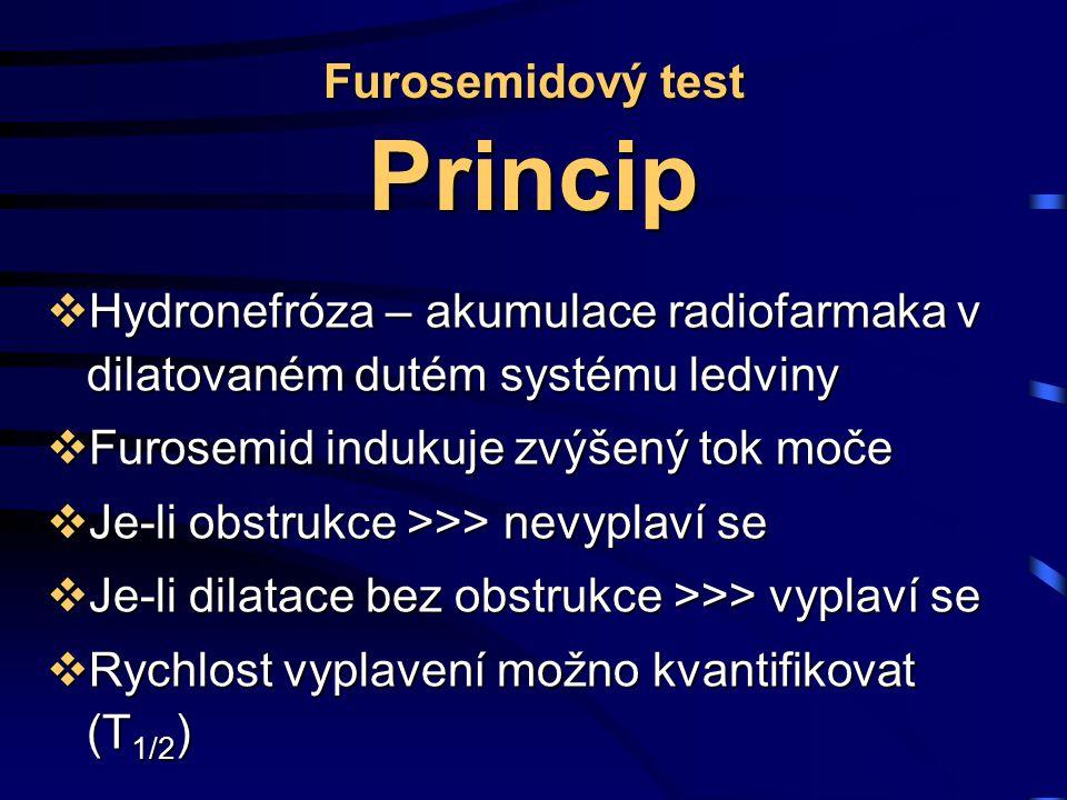 Furosemidový test Princip  Hydronefróza – akumulace radiofarmaka v dilatovaném dutém systému ledviny  Furosemid indukuje zvýšený tok moče  Je-li obstrukce >>> nevyplaví se  Je-li dilatace bez obstrukce >>> vyplaví se  Rychlost vyplavení možno kvantifikovat (T 1/2 )