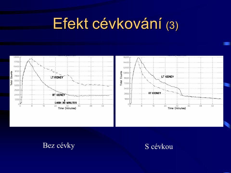 Efekt cévkování (3) S cévkou Bez cévky