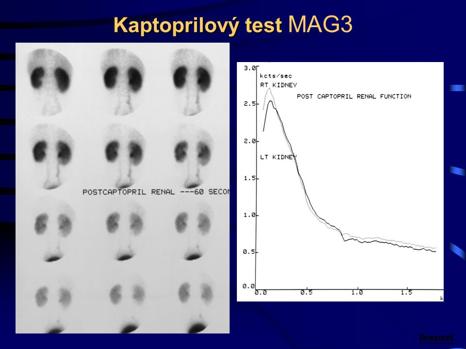 Kaptoprilový test Kaptoprilový test MAG3