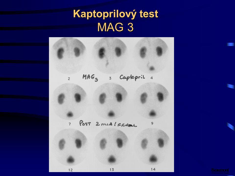 Kaptoprilový test MAG 3