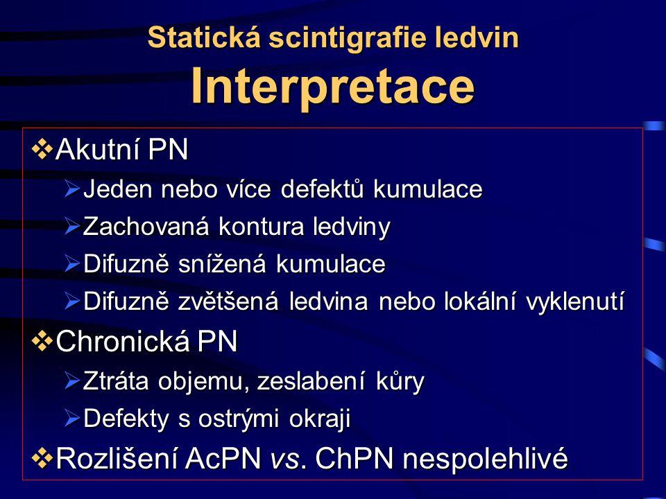 Statická scintigrafie ledvin Interpretace  Akutní PN  Jeden nebo více defektů kumulace  Zachovaná kontura ledviny  Difuzně snížená kumulace  Difu