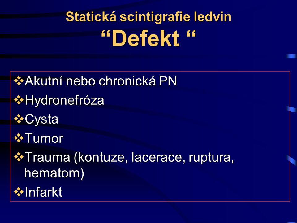 """Statická scintigrafie ledvin """"Defekt """"  Akutní nebo chronická PN  Hydronefróza  Cysta  Tumor  Trauma (kontuze, lacerace, ruptura, hematom)  Infa"""