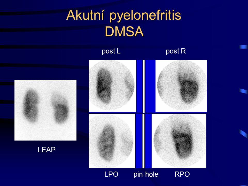 Akutní pyelonefritis DMSA post L LPO pin-hole post R RPO LEAP