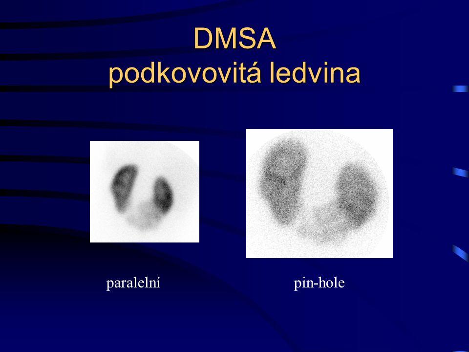 DMSA podkovovitá ledvina paralelnípin-hole