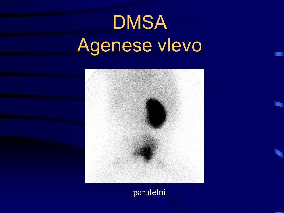 DMSA Agenese vlevo paralelní