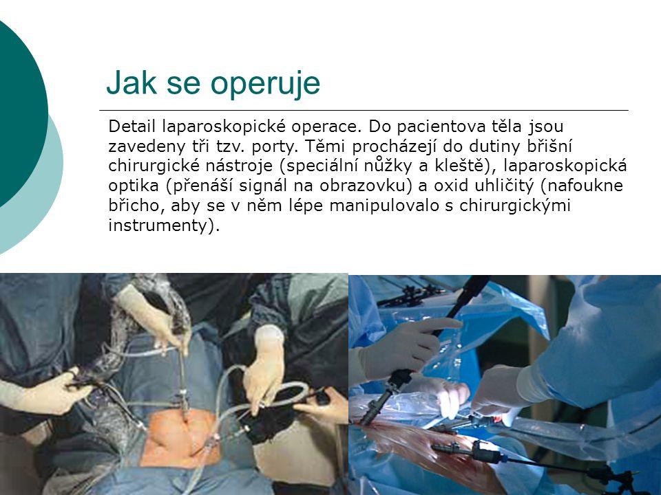 Jak se operuje Detail laparoskopické operace. Do pacientova těla jsou zavedeny tři tzv. porty. Těmi procházejí do dutiny břišní chirurgické nástroje (