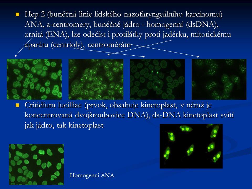 Hep 2 (buněčná linie lidského nazofaryngeálního karcinomu) ANA, a-centromery, buněčné jádro - homogenní (dsDNA), zrnitá (ENA), lze odečíst i protilátk