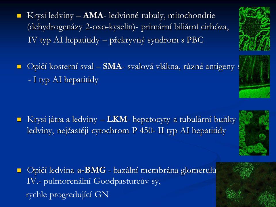 Krysí ledviny – AMA- ledvinné tubuly, mitochondrie (dehydrogenázy 2-oxo-kyselin)- primární biliární cirhóza, Krysí ledviny – AMA- ledvinné tubuly, mit