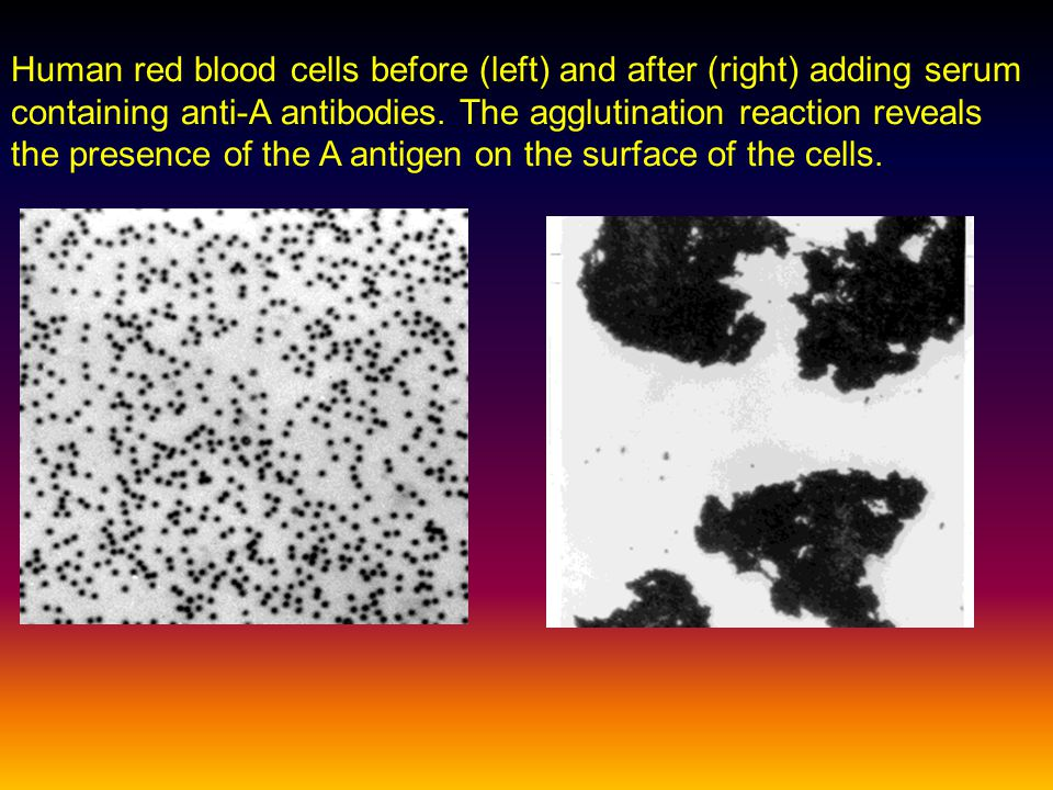 Human red blood cells before (left) and after (right) adding serum containing anti-A antibodies. The agglutination reaction reveals the presence of th