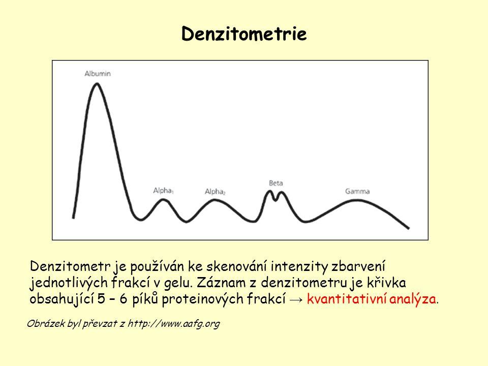Denzitometrie Denzitometr je používán ke skenování intenzity zbarvení jednotlivých frakcí v gelu. Záznam z denzitometru je křivka obsahující 5 – 6 pík