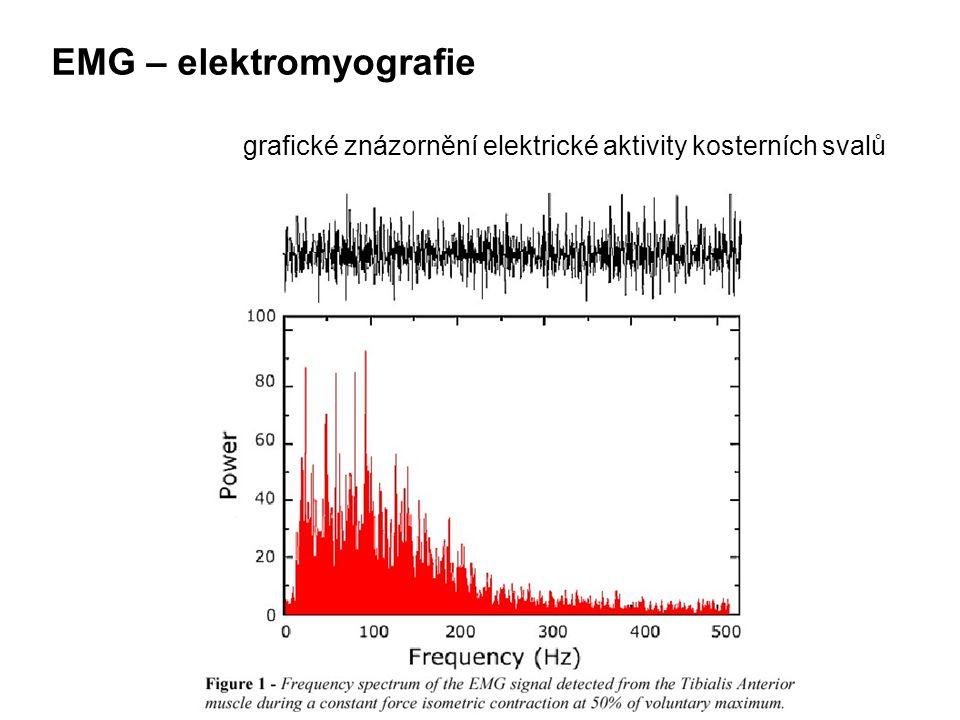EMG – elektromyografie grafické znázornění elektrické aktivity kosterních svalů
