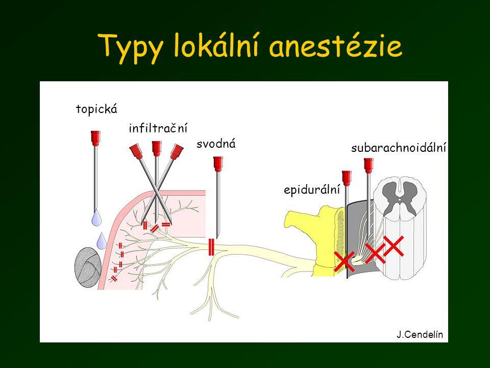 Typy lokální anestézie topická infiltrační svodná epidurální subarachnoidální J.Cendelín