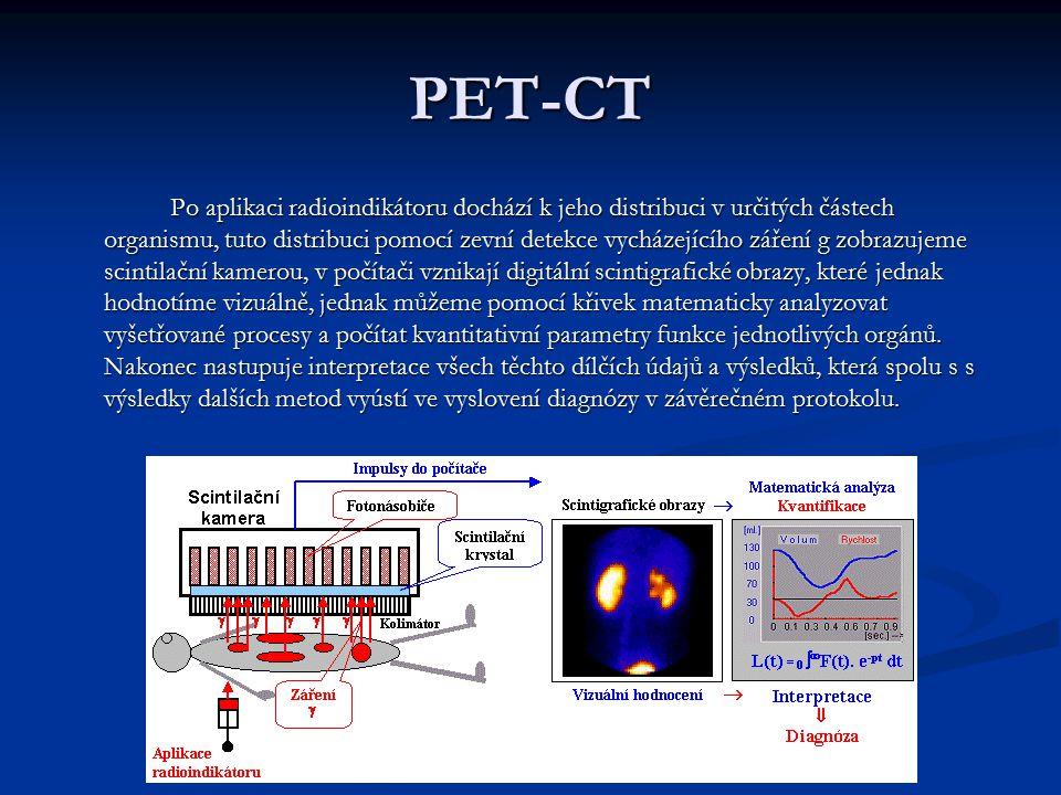 PET-CT Po aplikaci radioindikátoru dochází k jeho distribuci v určitých částech organismu, tuto distribuci pomocí zevní detekce vycházejícího záření g