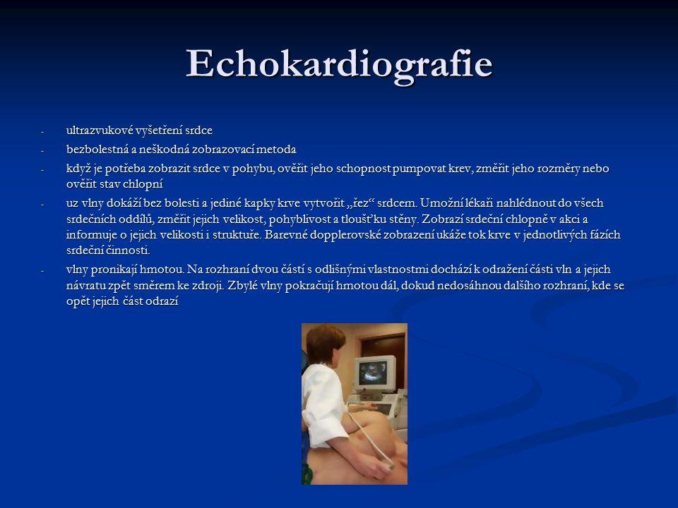 Echokardiografie - ultrazvukové vyšetření srdce - bezbolestná a neškodná zobrazovací metoda - když je potřeba zobrazit srdce v pohybu, ověřit jeho sch