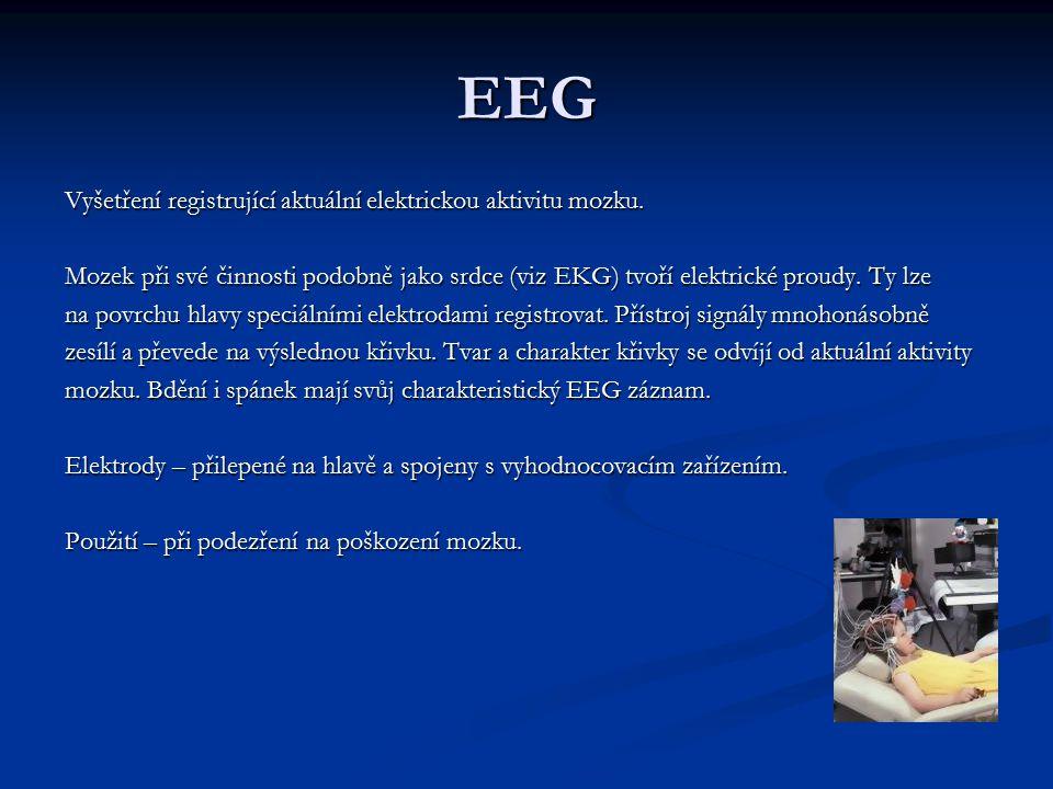 EEG Vyšetření registrující aktuální elektrickou aktivitu mozku. Mozek při své činnosti podobně jako srdce (viz EKG) tvoří elektrické proudy. Ty lze na