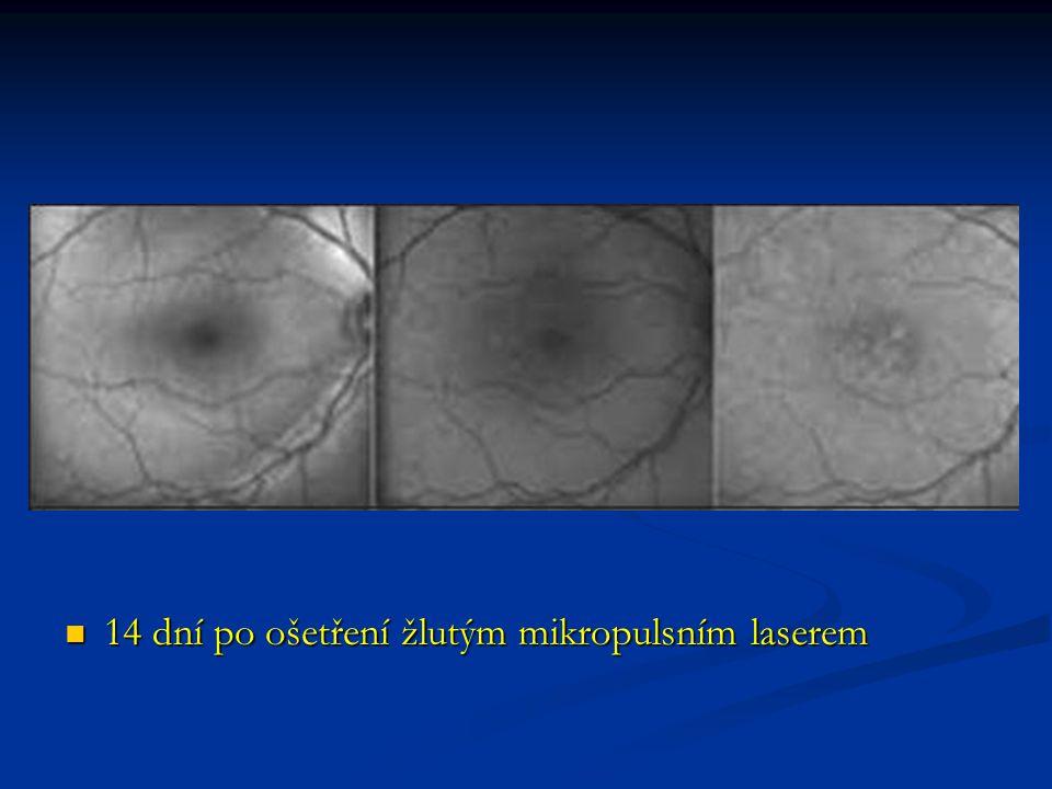 14 dní po ošetření žlutým mikropulsním laserem