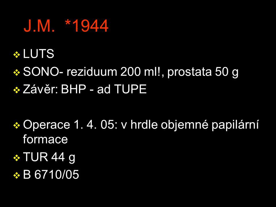 J.M.*1944 v LUTS v SONO- reziduum 200 ml!, prostata 50 g v Závěr: BHP - ad TUPE v Operace 1.