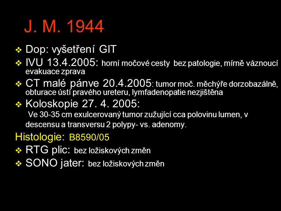 J. M. 1944 v Dop: vyšetření GIT v IVU 13.4.2005: horní močové cesty bez patologie, mírně váznoucí evakuace zprava v CT malé pánve 20.4.2005 : tumor mo